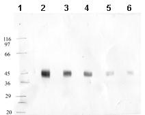 Western blot - Anti-MASP1 antibody (ab65900)