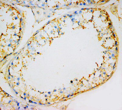 Immunohistochemistry (Formalin/PFA-fixed paraffin-embedded sections) - INSL3 antibody (ab65981)