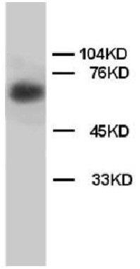 Western blot - Anti-Lamin B1 antibody (ab65986)