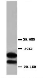 Western blot - Myelin Basic Protein antibody (ab65988)