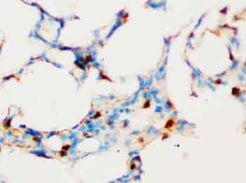 Immunohistochemistry (Formalin/PFA-fixed paraffin-embedded sections) - SOCS1  antibody (ab65989)
