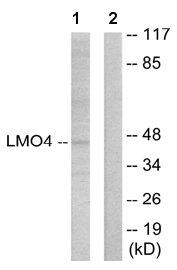 Western blot - LMO4 antibody (ab65991)