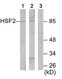 Western blot - HSF2 antibody (ab65996)