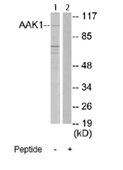 Western blot - AAK1 antibody (ab66005)