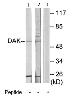 Western blot - DAK antibody (ab66006)
