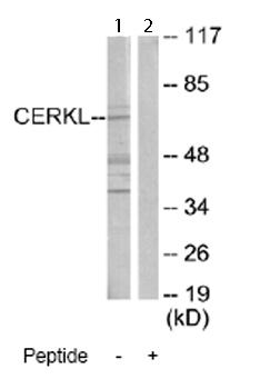 Western blot - CERKL antibody (ab66007)
