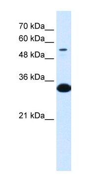 Western blot - A1BG antibody (ab66011)