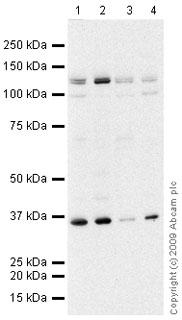 Western blot - Flt3 / CD135 antibody (ab66035)