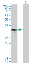 Western blot - CENPP antibody (ab66058)