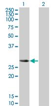 Western blot - SLAP2 antibody [3G5] (ab66060)