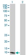 Western blot - Methionine Sulfoxide Reductase B antibody (ab66061)