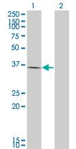 Western blot - TIM 1 antibody (ab66062)
