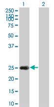 Western blot - Hsp22 antibody (ab66063)