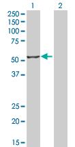 Western blot - MUM1 antibody (ab66069)