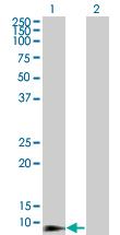 Western blot - beta 2 Defensin antibody (ab66072)