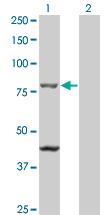 Western blot - TAP1 antibody (ab66074)