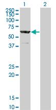 Western blot - CESK1 antibody (ab66076)