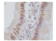 Immunohistochemistry (Formalin/PFA-fixed paraffin-embedded sections) - HNF4 gamma antibody [B6502A] (ab66179)