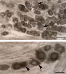 Immunocytochemistry - Neurotensin Receptor 1 antibody (ab66216)
