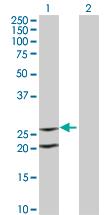 Western blot - IL6 antibody (ab66231)