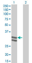 Western blot - Antithrombin III antibody (ab66234)