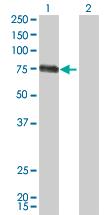 Western blot - MCSF antibody (ab66236)