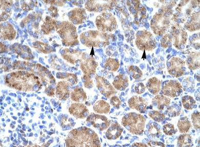 Immunohistochemistry (Formalin/PFA-fixed paraffin-embedded sections) - POU4F3 antibody (ab66260)