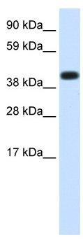 Western blot - Hsp70 antibody (ab66262)