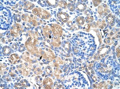 Immunohistochemistry (Formalin/PFA-fixed paraffin-embedded sections) - Hsp27 antibody (ab66266)