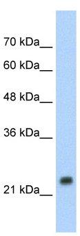 Western blot - Hsp27 antibody (ab66266)
