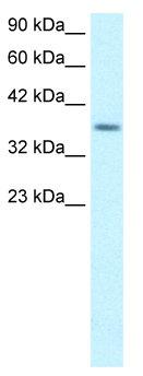 Western blot - RPS16 antibody (ab66267)