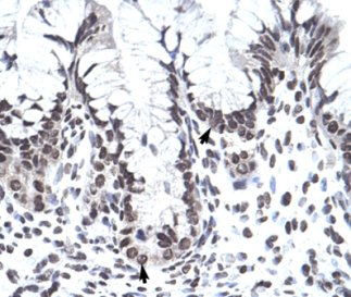 Immunohistochemistry (Formalin/PFA-fixed paraffin-embedded sections) - PHF1 antibody (ab66275)