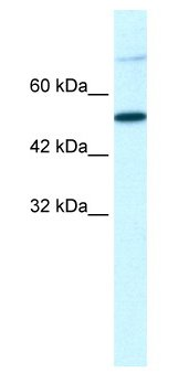 Western blot - Tbx3 antibody (ab66306)
