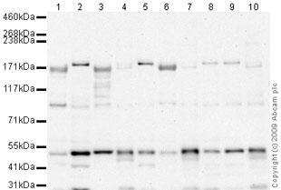 Western blot - ROCK2 antibody (ab66320)