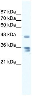 Western blot - ZNF577 antibody (ab66381)