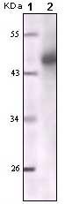 Western blot - pan Cytokeratin antibody [7H8C4] (ab66387)