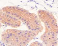 Immunohistochemistry (Formalin/PFA-fixed paraffin-embedded sections) - pan Cytokeratin antibody [7H8C4] (ab66387)