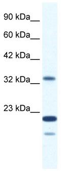 Western blot - ZNF688 antibody (ab66388)