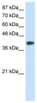 Western blot - DLX3 antibody (ab66390)