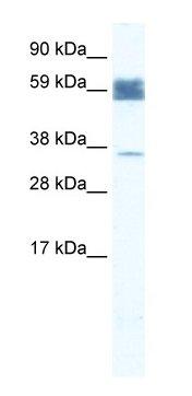 Western blot - ZNF713 antibody (ab66393)