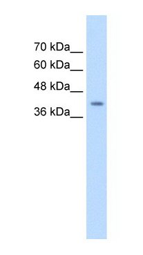 Western blot - MASPIN antibody (ab66513)