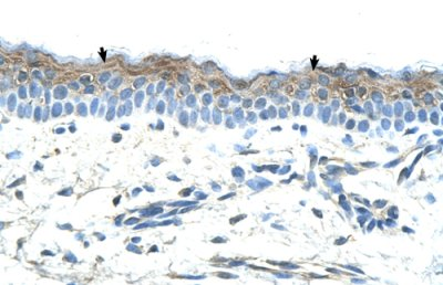 Immunohistochemistry (Formalin/PFA-fixed paraffin-embedded sections) - MASPIN antibody (ab66513)