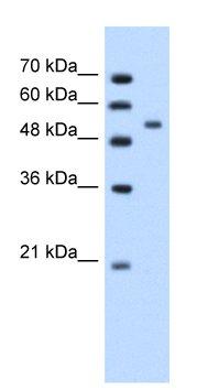 Western blot - Perilipin A+B antibody (ab66514)