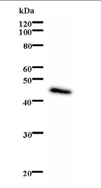 Western blot - CSB antibody [553C5a] (ab66598)