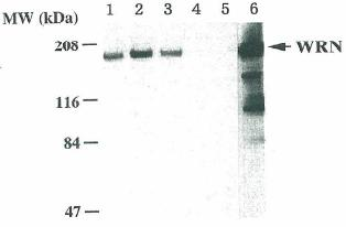 Western blot - Werner's syndrome helicase WRN antibody [4H12] - Carboxyterminal end (ab66606)