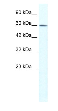 Western blot - RNF22 antibody (ab66612)
