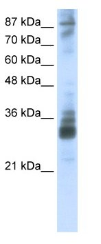 Western blot - RG9MTD2 antibody (ab66615)