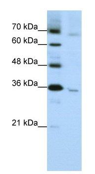 Western blot - Anti-Wnt5b antibody (ab66616)