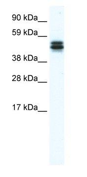 Western blot - E130307M08RIK antibody (ab66621)