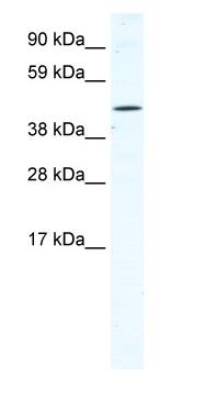 Western blot - TTC19 antibody (ab66622)